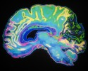 http://www.dreamstime.com/royalty-free-stock-photos-coloured-mri-scan-human-brain-image8398188