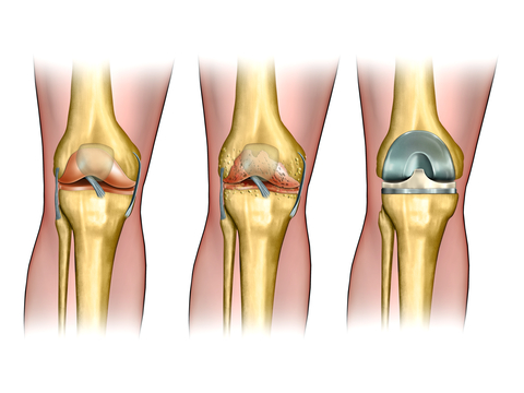 http://www.dreamstime.com/royalty-free-stock-image-knee-replacement-image25407246