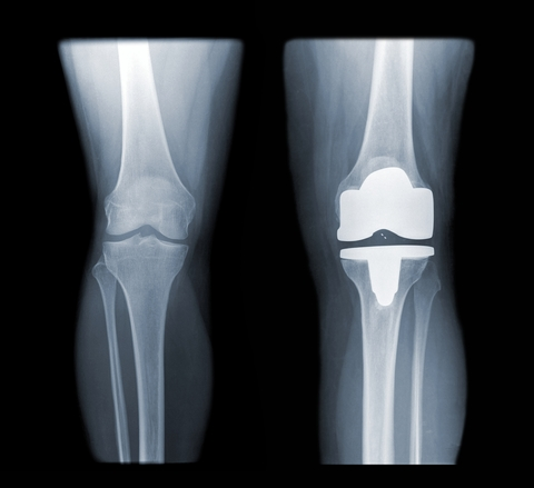 http://www.dreamstime.com/stock-image-total-knee-replacement-image13617611