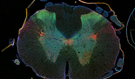 Cross section rat spinal cord. Immunostaining: axons (red), synapses (green), motor neurons (blue). Source: DZNE/Jörg Ruschel