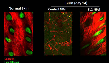 Imaging of burns indicates that those treated with the FL2 inhibitor nanotechnology experienced collagen deposition and hair follicle formation. (2-photo confocal microscopy) Credit: Vera DesMarais/Albert Einstein College of Medicine